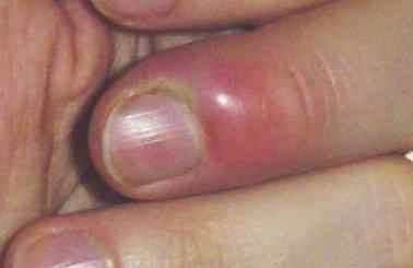 Le moyen du microorganisme végétal sur les pieds avec le vinaigre
