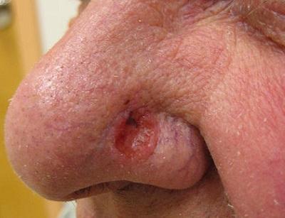 Le psoriasis les aspects immunologiques