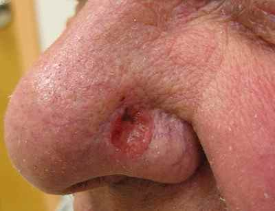 Cancers de la peau