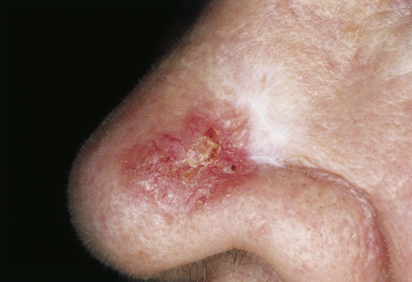 Les taches blanches de pigment sur la peau quest-ce que cest