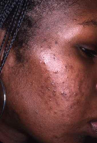 Ces actifs cosmétiques à éviter si vous avez une peau sensible