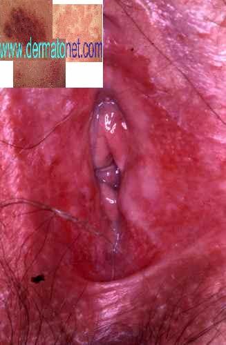 Candidose ou mycose vaginale