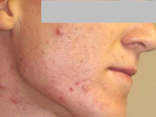 Acn sur les fesses : dfinition, symptmes, traitement