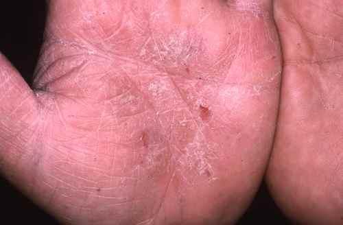 Le psoriasis sur la tête est le microorganisme végétal