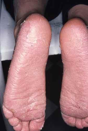Tout le pied est atteint par la mycose : aspect farineux et desquamatif