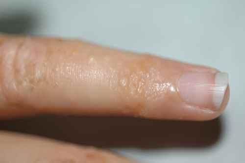 Longuent momat avec les rappels au psoriasis