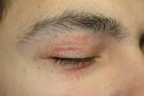 Chez lenfant atopitchesky la dermatite comme lui traitent