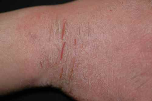 Atopitchesky on ne peut pas faire la dermatite que
