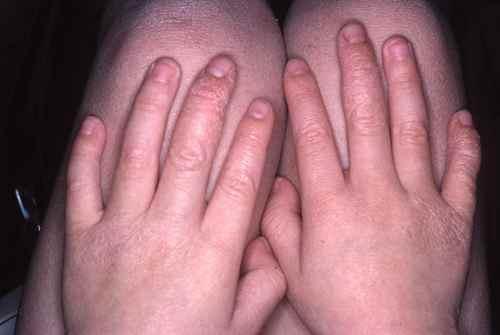 Eczema des mains lichenifié (la peau est épaissie)