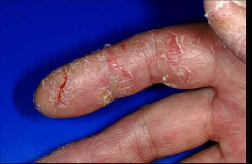 hand skin conditions