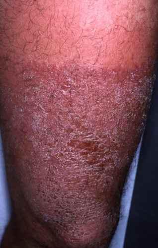 Eczema au soleil