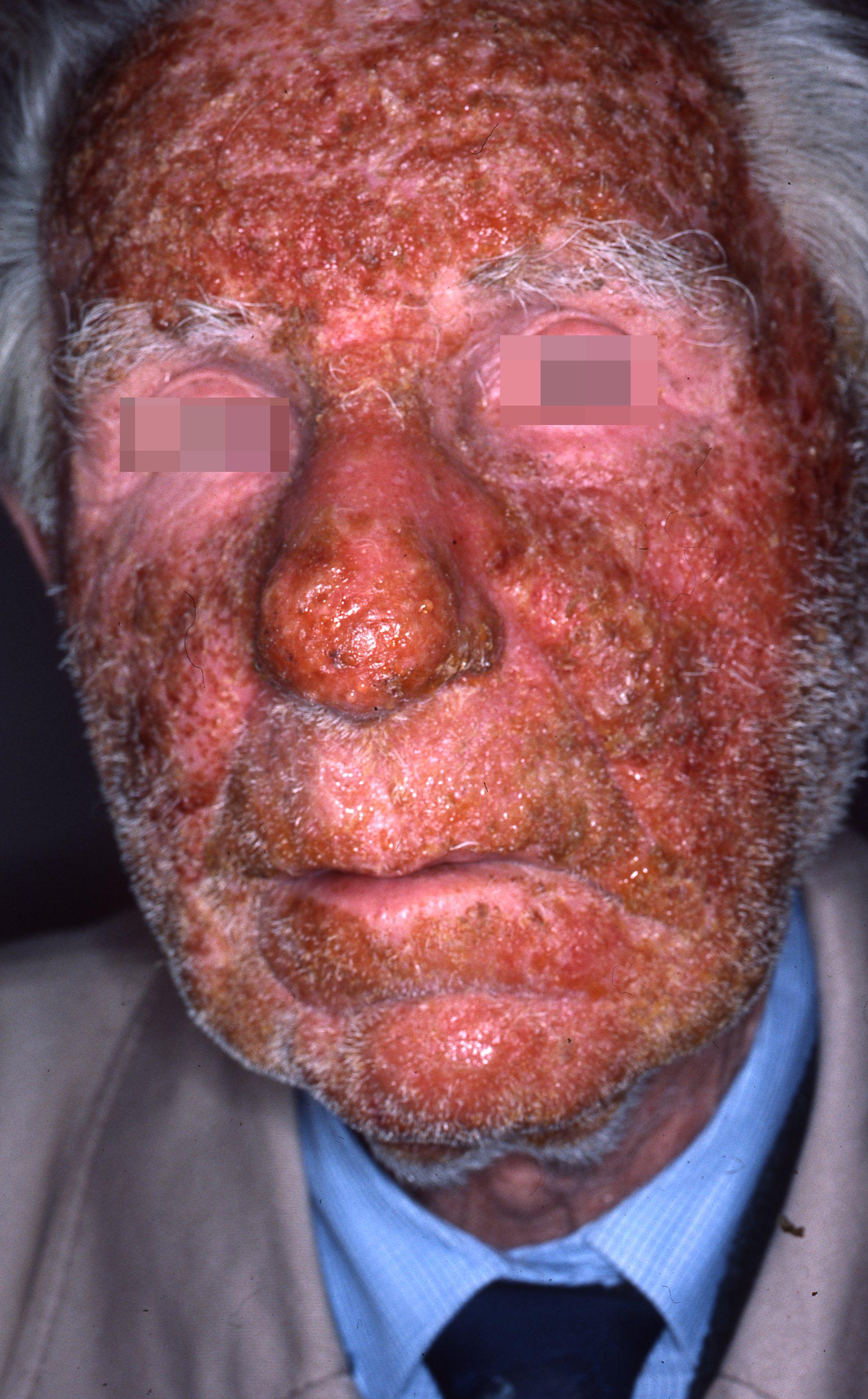 Eczema surinfecté du visage