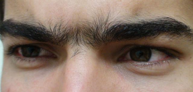 epilation entre les sourcils