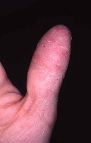 fissures des doigts petites crevasses douloureuses sur et entre les doigts dermatologue en ligne. Black Bedroom Furniture Sets. Home Design Ideas