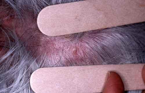 Les moyens pour les cheveux de vichi