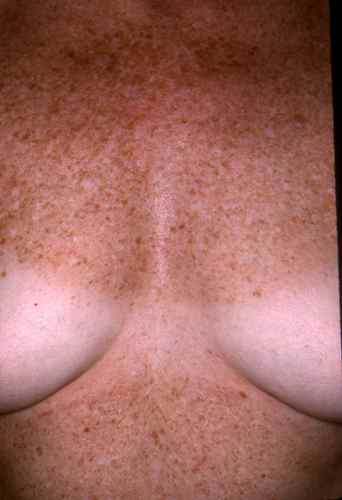 La crème de la violation de la pigmentation