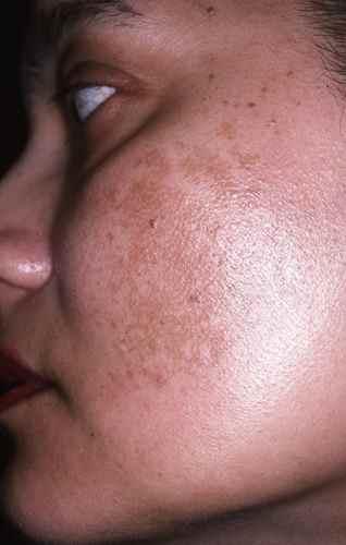 La cote des cosmétiques pour la sortie de la peau de la personne