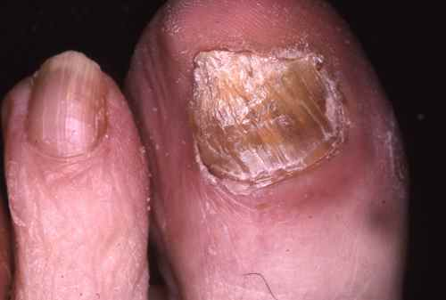 Onychomycose du gros orteil