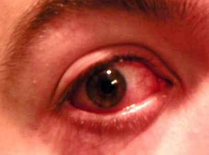 Un oeil rouge