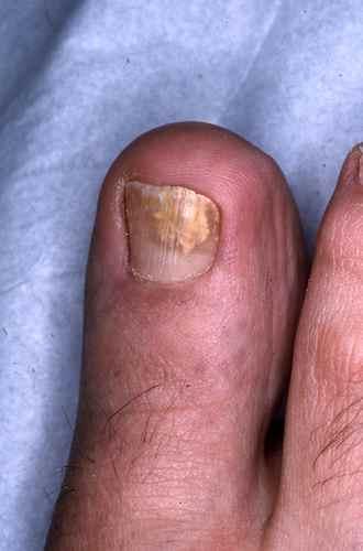 Mycose débutante de l'ongle