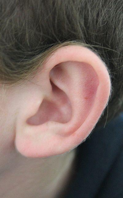 nodule douloureux oreille