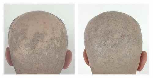 Traitement de la pelade