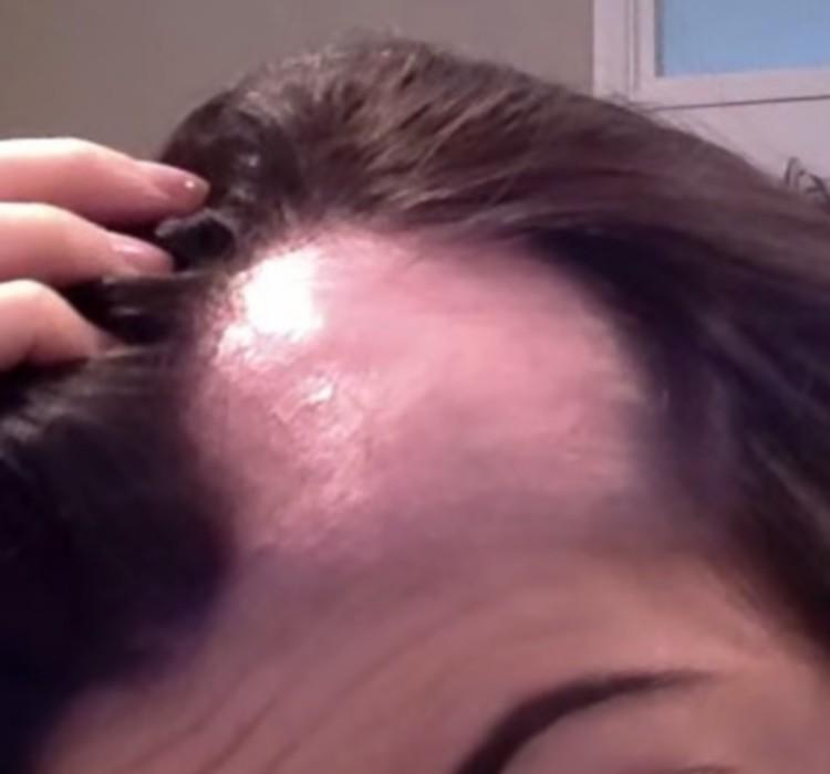 La chute des cheveux après le régime que faire