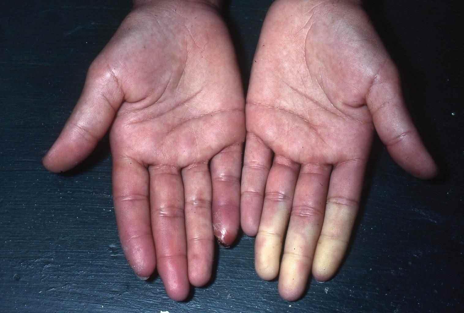 soigner mycose ongle