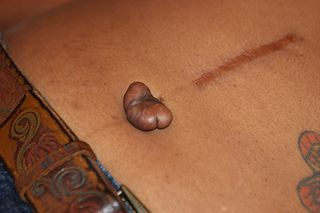 Cheloide sur piercing