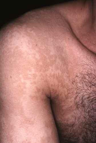 Pitirasis versicolor