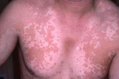 Les procédures cosmétiques blanchissant de la personne