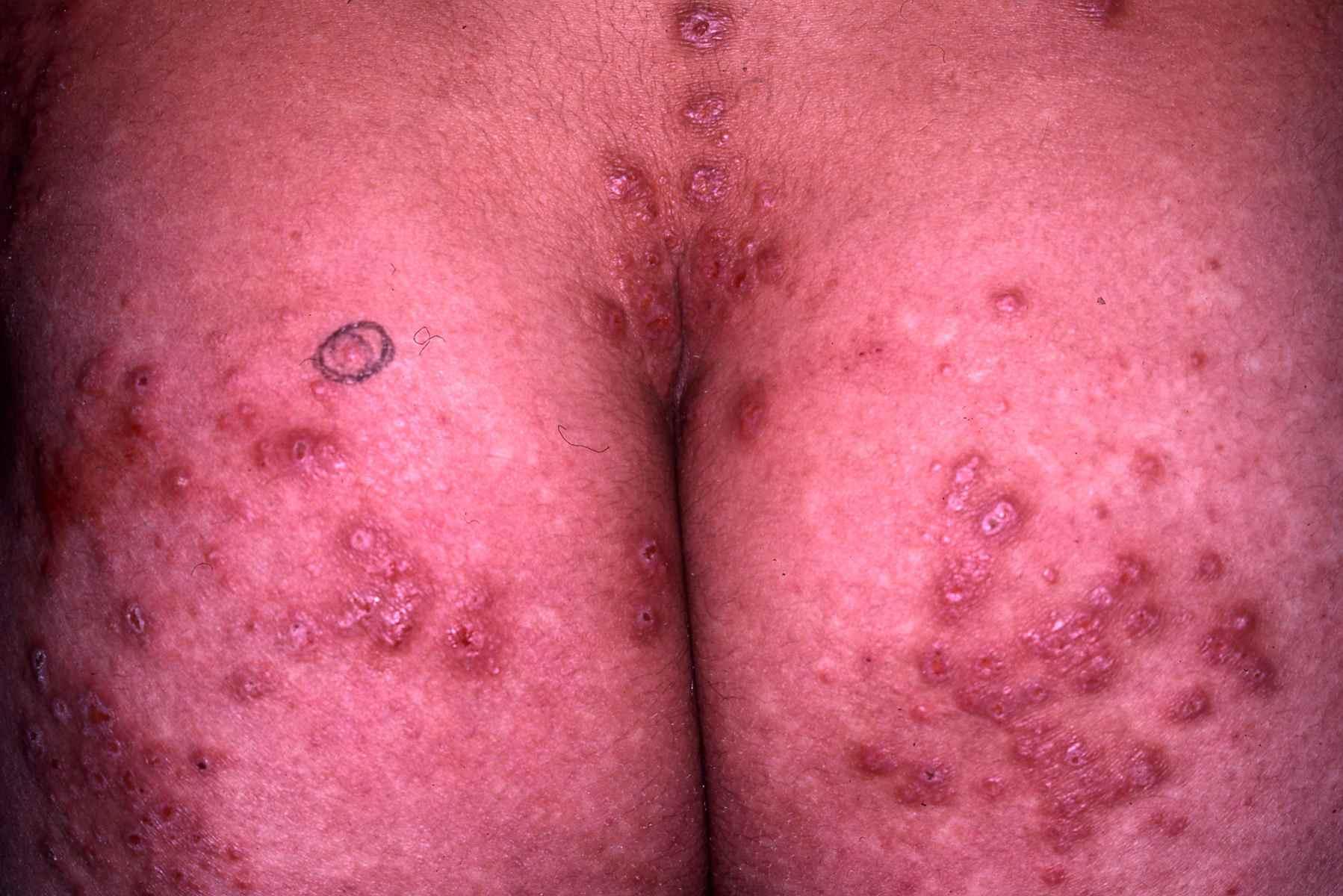 Le traitement du psoriasis les bains de radon