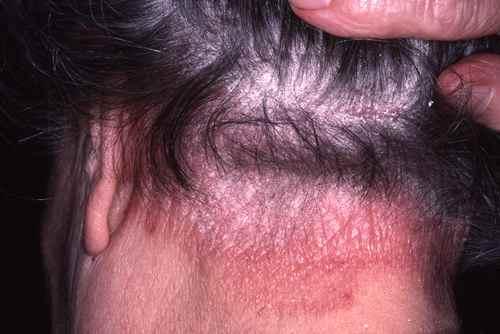 Psoriasis du cuir chevelu