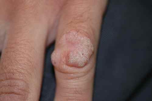 Récidive d'une verrue du doigt en couronne, après traitement