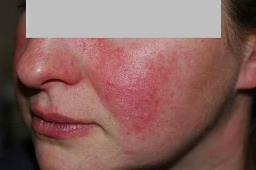 eczema sur les joues