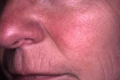 Le blanchiment de la peau les traces des boutons