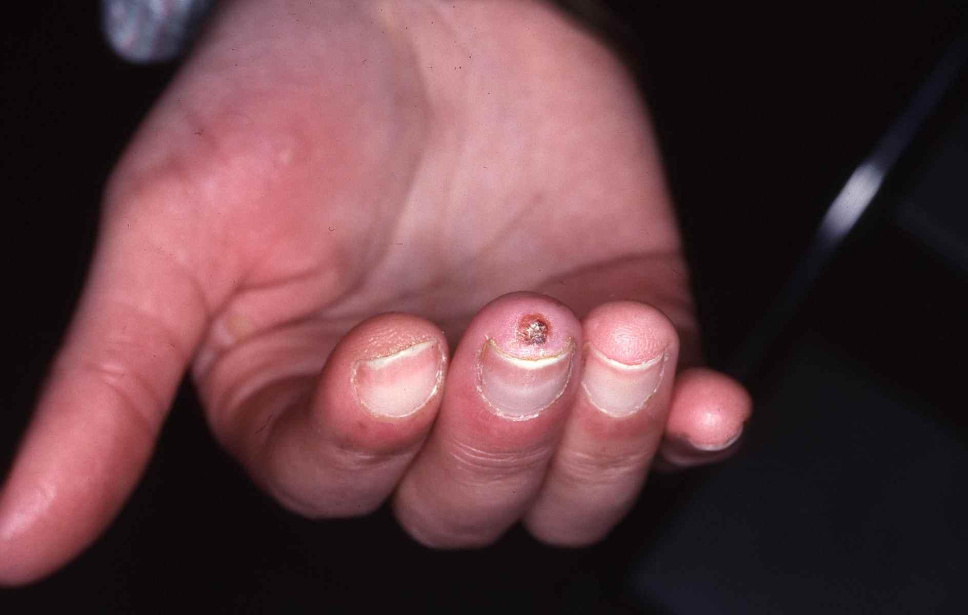 crème syndrome de raynaud