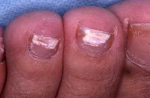Les ongles incarnés sur les pieds le traitement longuent avec